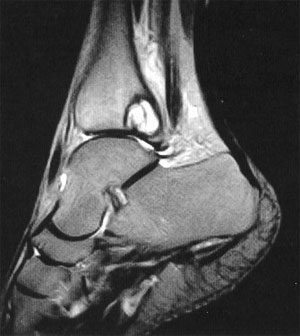 MRI Of The Ankle Changes Patient Treatment