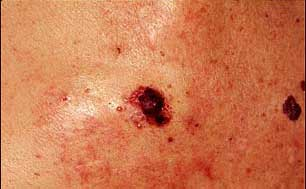 Target For Skin Cancer Treatment