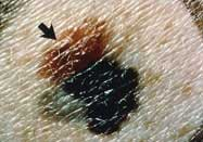 Listening To The Sound Of Skin Cancer