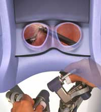 3-D ultrasound and robotic surgery