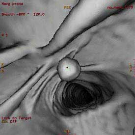 Virtual Colonoscopy More Expensive