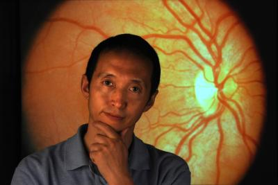 Looking into eyes to find Alzheimer's