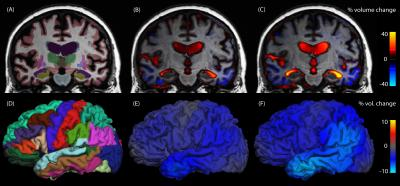 Structural brain changes in Alzheimer's disease
