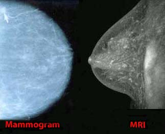 Breast MRI to supplement standard imaging