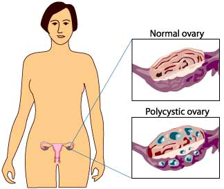 Fat tissue in women with Polycystic Ovary Syndrome