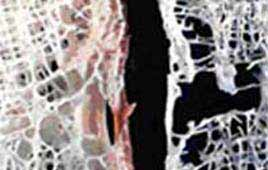 Protein That Appears To Regulate Bone Mass Loss