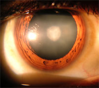 MU researchers find clue to cataract formation