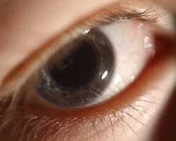 Many older Americans not treated for glaucoma