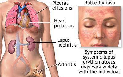 Research links genetic mutations to lupus
