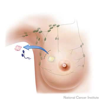 Core Needle Biopsy Gives An Accurate Picture