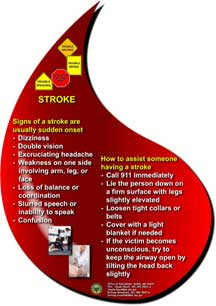 Focus on stroke