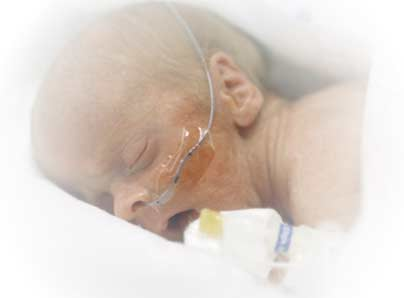 Inhaled nitric oxide safe for tiny preemie lungs