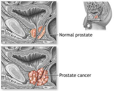 More prostate cancer screening has little effect