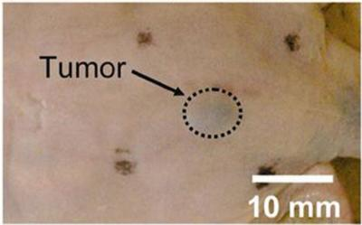 Earlier detection of melanoma