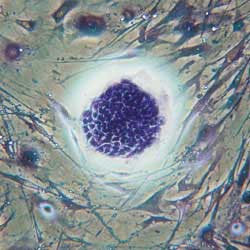 Embryonic stem cells used to grow cartilage