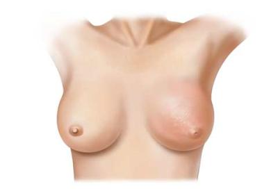 More breast cancer patients electing to remove other breast