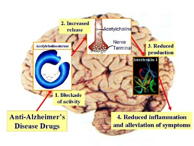 Drug Slows Severe Alzheimer's Symptoms