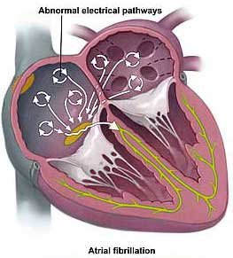 Magnetic Catheter Controls Atrial Fibrillation
