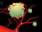 Targeting The New Blood Vessels