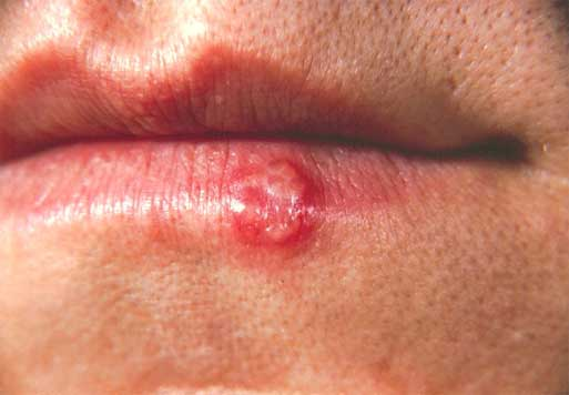 Why That Cold Sore Keep Coming Back?
