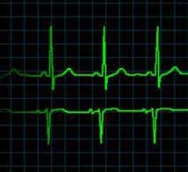New Gene Associated With Abnormal Heart Rhythm