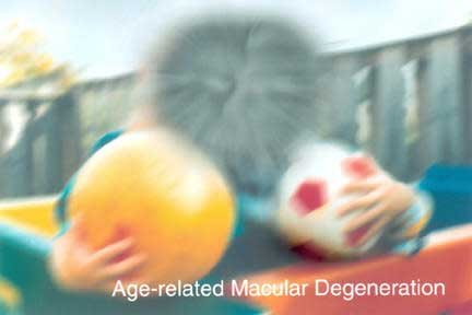 Macular Degeneration May Lead To Cognitive Impairment