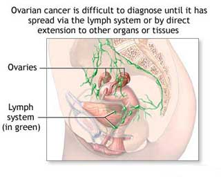 Diagnosing Ovarian Cancer
