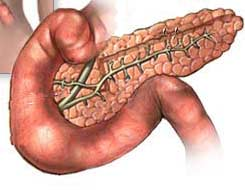 Pancreatic Cancer Linked to Insulin Resistance