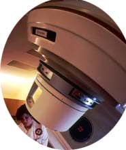 Radiation Therapy After Breast Cancer Surgery