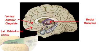 Antidepressants Boost Brain Growth
